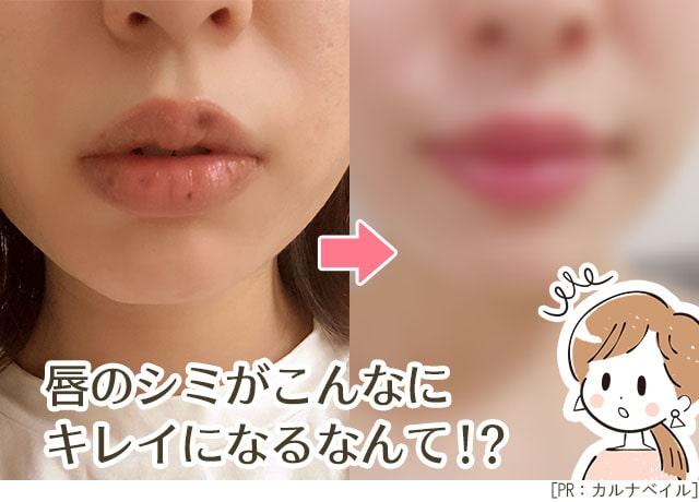 唇のシミのケア