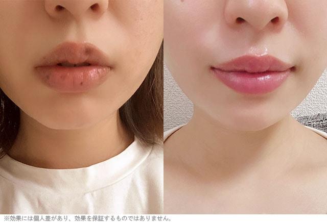 唇の自撮り写真